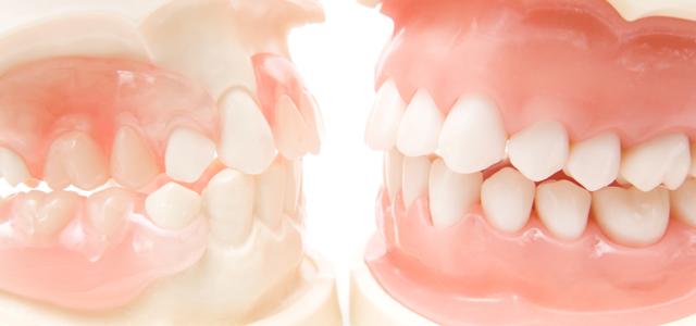 歯を失ってしまった方へ